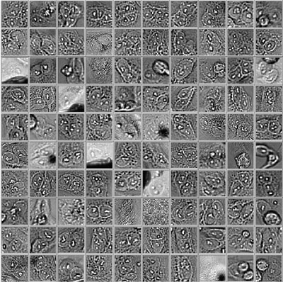 Figure 13 Random selection of 100 unusually large objects of the whole validation data set. GFP nuclear labels (left), bright field image (center) and AI prediction of nuclei positions from bright field image (right).