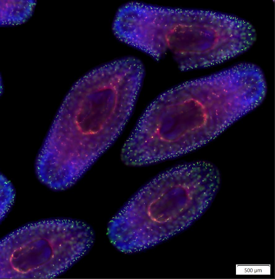 微型真涡虫S. mediterranea两个排泄系统标记物的双重荧光(红色和绿色)原位杂交。