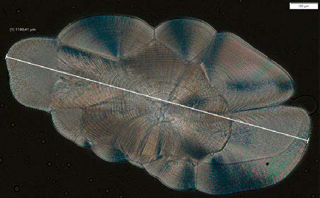 Adult herring otolith acquired at 40x