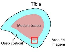 Figura 1: Seção tibial