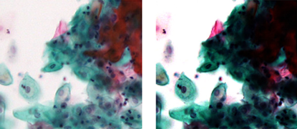 Figure 2 – An example of an image with a well-designed contrast curve (left) showing both pale bright cells and dark layered cells. The image with a poorly designed contrast curve (right) does not.