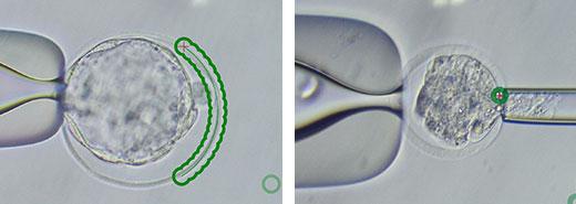 Laser Manipulation of Embryos