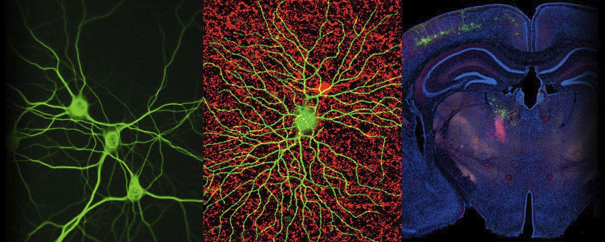 Did you miss Neuroscience Week 2020?
