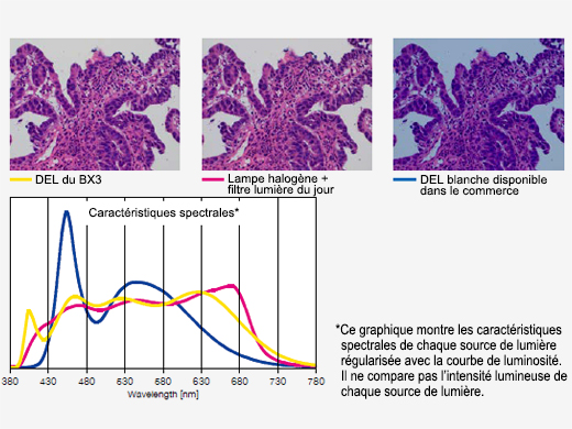 Éclairage à DEL lumineux optimisé pour la pathologie et la cytologie