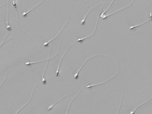 Morphological evaluation of sperm in high magnification 2x