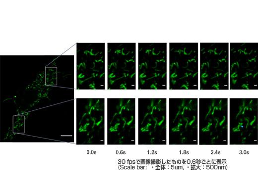 GFPでラベルしたミトコンドリアのビデオレート(30fps)での高速観察 個々の細かいミトコンドリアの動態観察ができている。(Scale bar: 全体:5um, 拡大: 500nm)