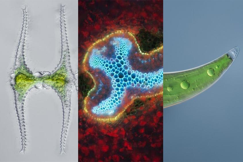 Algae images under a microscope