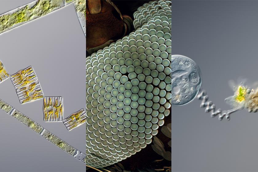 May 2020 top 5 microscopy images