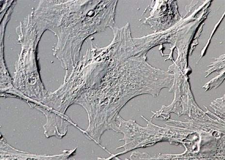 Indian Muntjac Deer Skin Fibroblasts