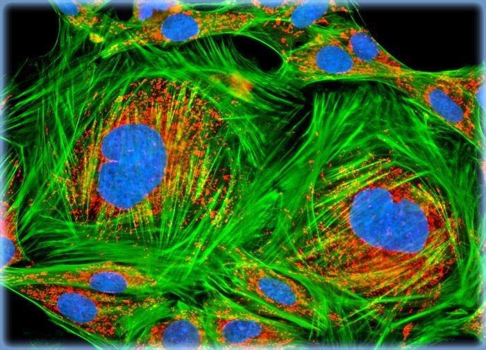 Rat Kidney Mesangial Cells (RMC Line)