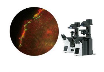 TIRF Imaging