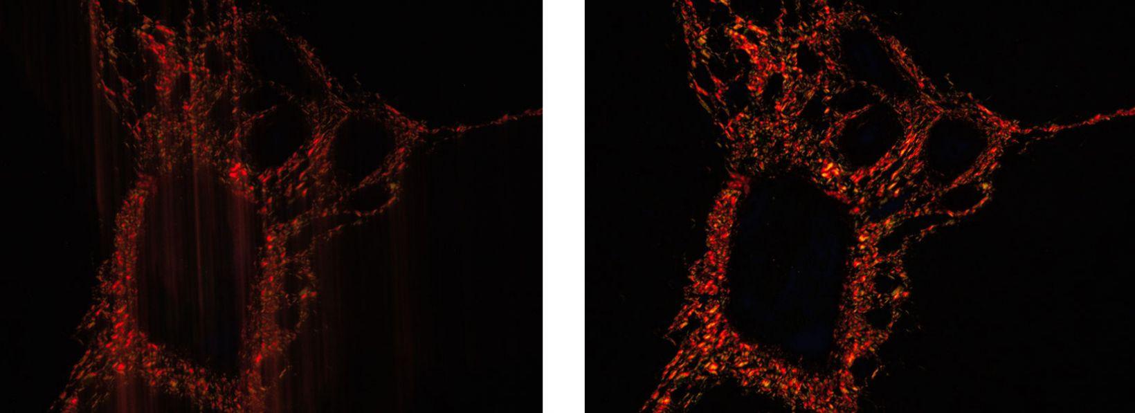 Imagerie en temps réel fluide en microscopie
